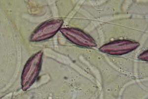 Sporen von Ascobolus viridis Currey